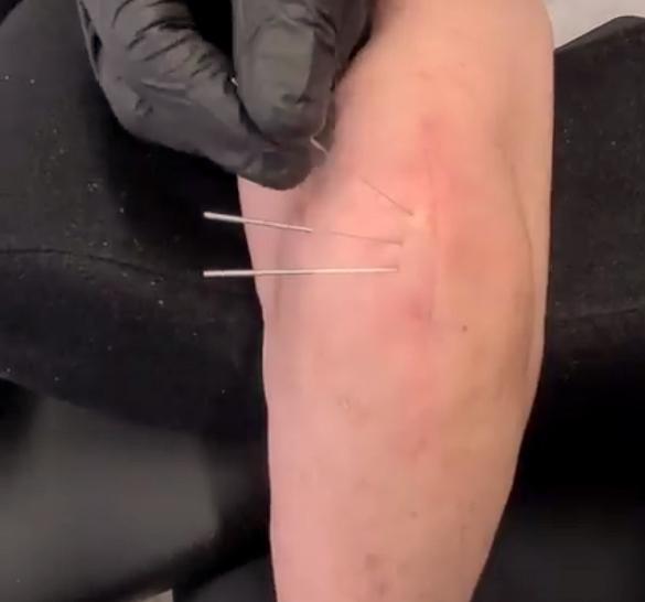 dry needling fort lauderdale
